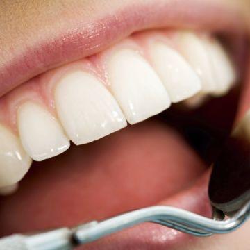 Preventitive Dentistry